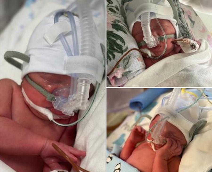 W szpitalu na Czarnowie urodziły się trojaczki