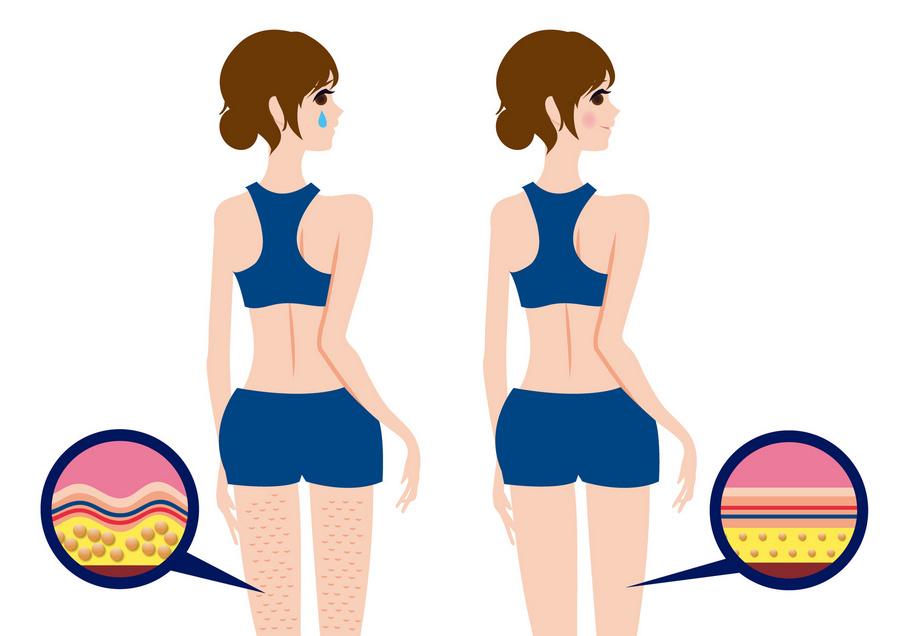 Jak pozbyć się cellulitu? Zobacz skuteczne sposoby i kremy antycellulitowe!